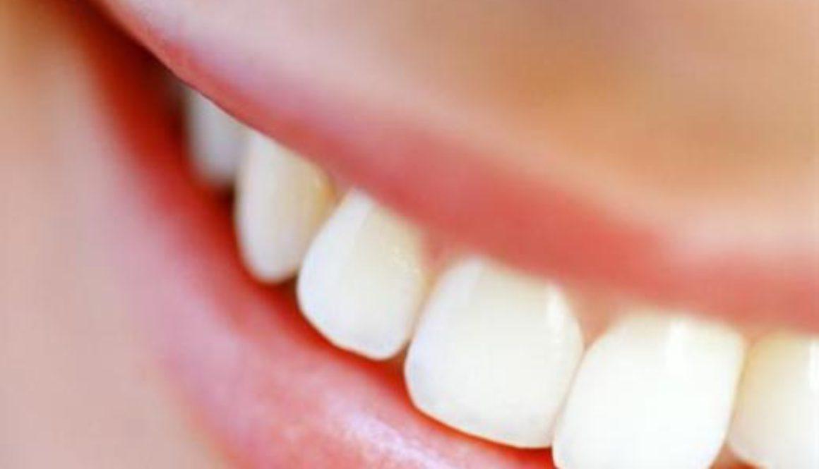 come trattare i denti macchiati