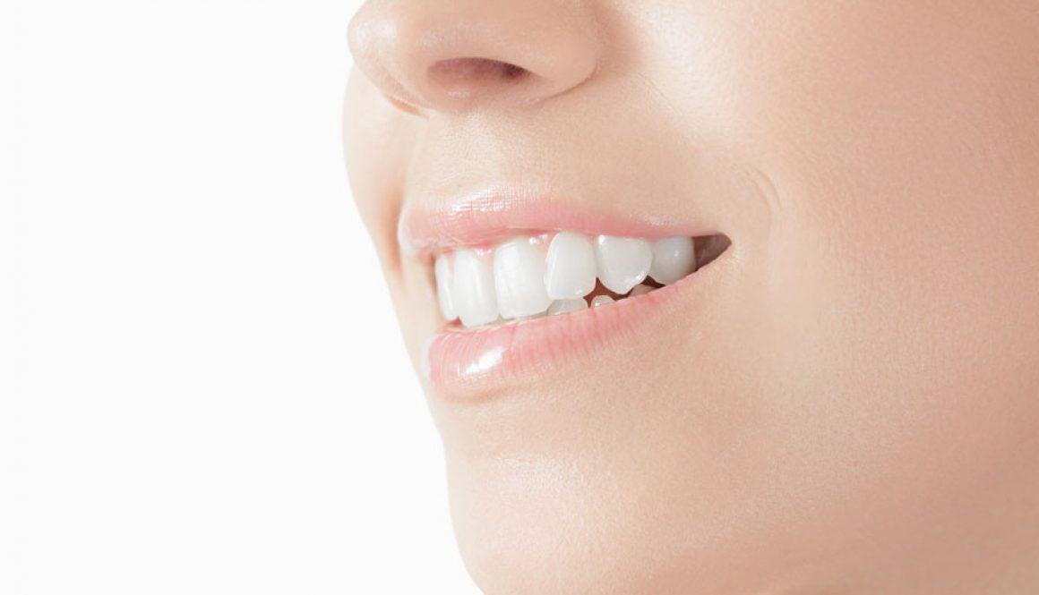 Alessandra Spinetti sbiancamento dentale professionale
