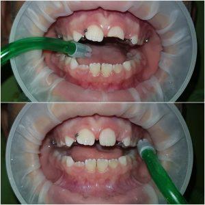 Traumi dentali - Spinetti